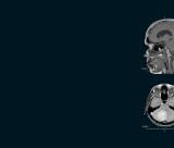 Biomedical imaging of the skull